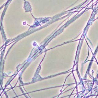növényi internet-micélium
